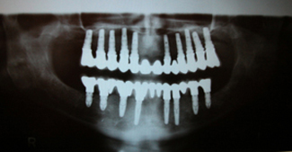 Implants dentaires, le róle de l'implantation