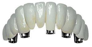 Les avantages des implants dentaires