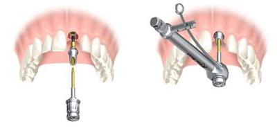 Pose de l'implant dentaire
